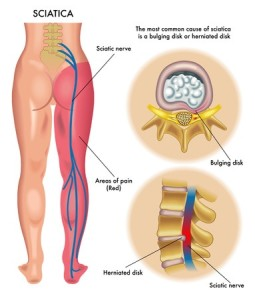 Denver Sciatica Treatment