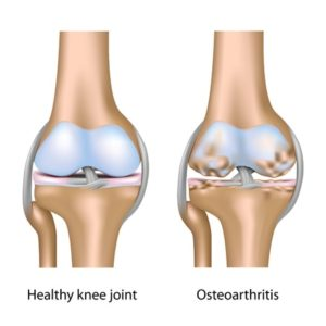 Stem Cell Knee Repair