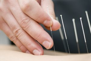 Denver Dry Needling