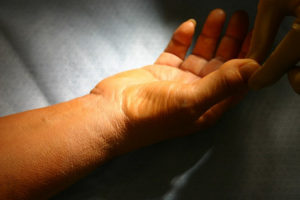 physical therapy carpal tunnel syndrome