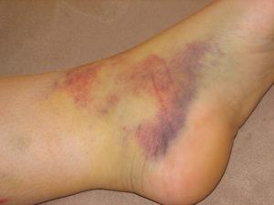 prevent ankle sprains
