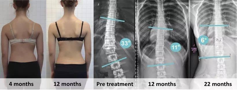 Scoliosis Treatment In Denver Schroth Scoliosis
