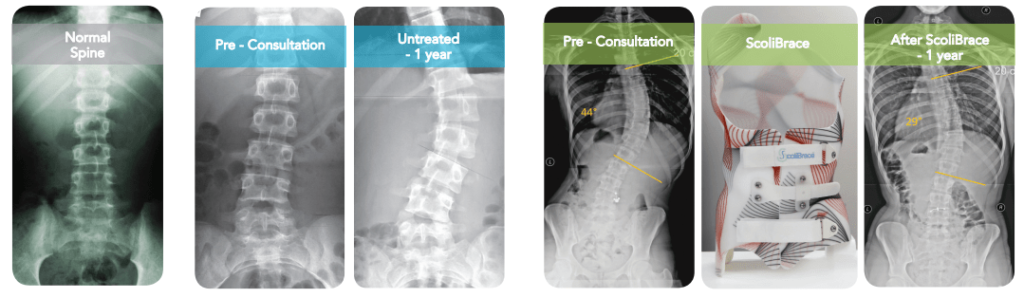 Scoliosis Progression in Children